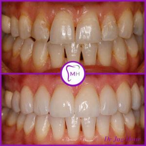 Veneers & Smile Makeover Before & After Malvern 1