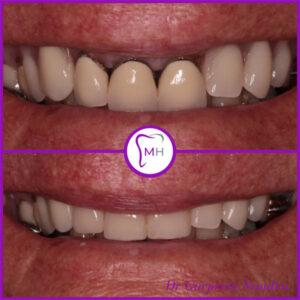 Dental Crowns Before & After 1 - Malvern