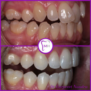 Invisalign & Whitening Before & After Malvern 1