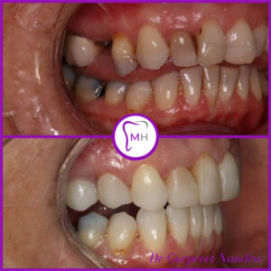 Smile make over before and after 1 Malvern