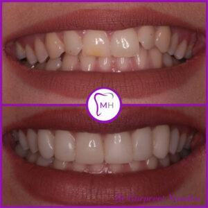 Enlighten Whitening & Composite Bonding before and after 1